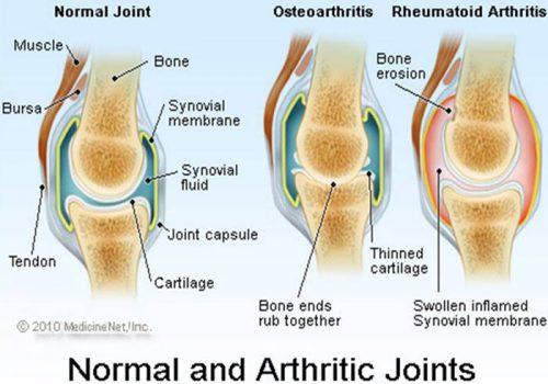 knee-pain-thumbnail-13