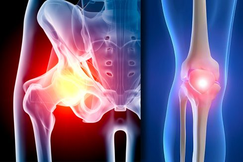 Had a hip or knee replacement